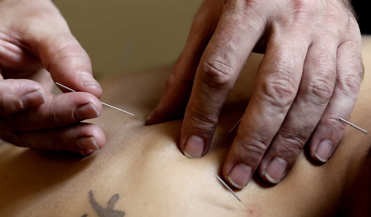 – Acupuncture –